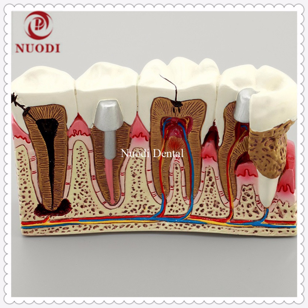4Times Anatomy of dental caries teeth model/Dental Caries Comparation Tooth Model/Study Disassembling Caries dental  Model human dental teeth model patient education model caries treatment model for department of dentistry display