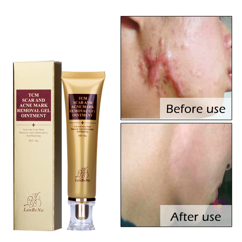 30g Acne Scar Removal Cream For Face Skin Care Spots Acne Scar Treatment Stretch Marks Repair Whitening Pregnancy Cream