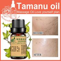100 Pure Plant Base Oil Skin Care Essential Oils France Tamanu Oil 10ml DIY Handmade Soap