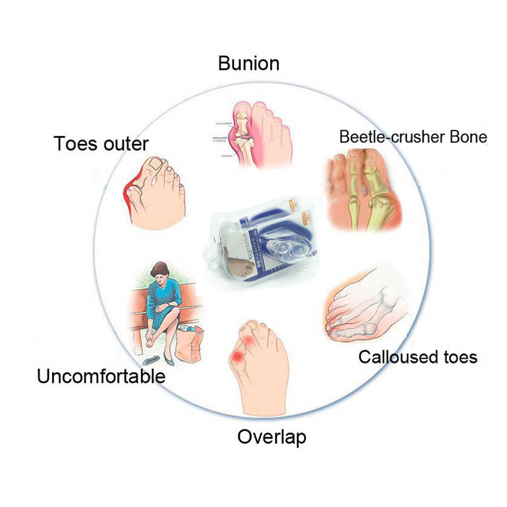 2pcs silicone gel big toe separator bunion adjuster thumb valgus protector pedicure foot pain relief foot  [ 1000 x 1000 Pixel ]