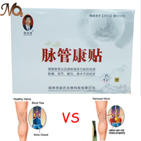 15pcs 5 Boxes 2016 High Quality Varicose Veins Cure Patch Vasculitis Herbal Treatment Acid Bilges Itching