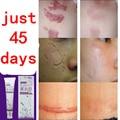 Medicina chinesa, cuidados de rosto anti acne creme de tratamento da cicatriz remoção de Manchas de Acne pele oleosa rosto cuidados com a pele estrias removedor