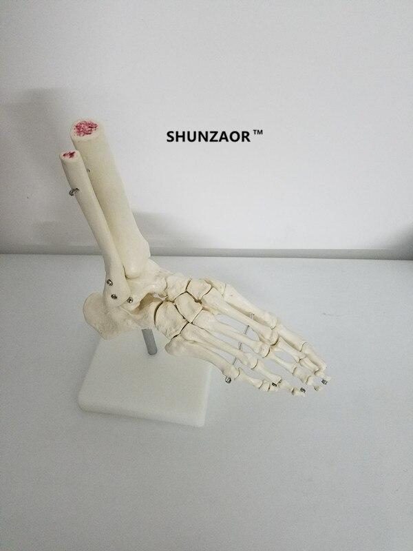 Shunzaor vida-tamanho pé comum modelo esqueleto humano modelo humano pé & tornozelo modelo-tamanho da vida modelo esquelético anatômico