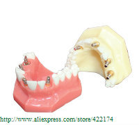 Free Shipping Implant model dental tooth teeth dentist anatomical anatomy model odontologia dh202 2 dentist education oral dental ortho metal and ceramic model china medical anatomical model