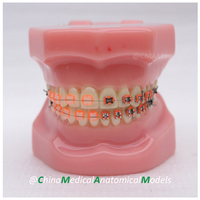 DH203-2ทันตแพทย์สาธิตช่องปากทันตกรรมOrthoโลหะและเซรามิกรุ่น,จีนแพทย์กายวิภาครุ่น