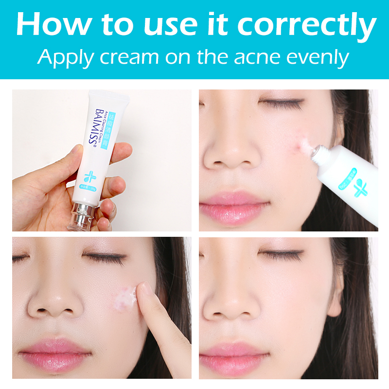 Image result for acne cream