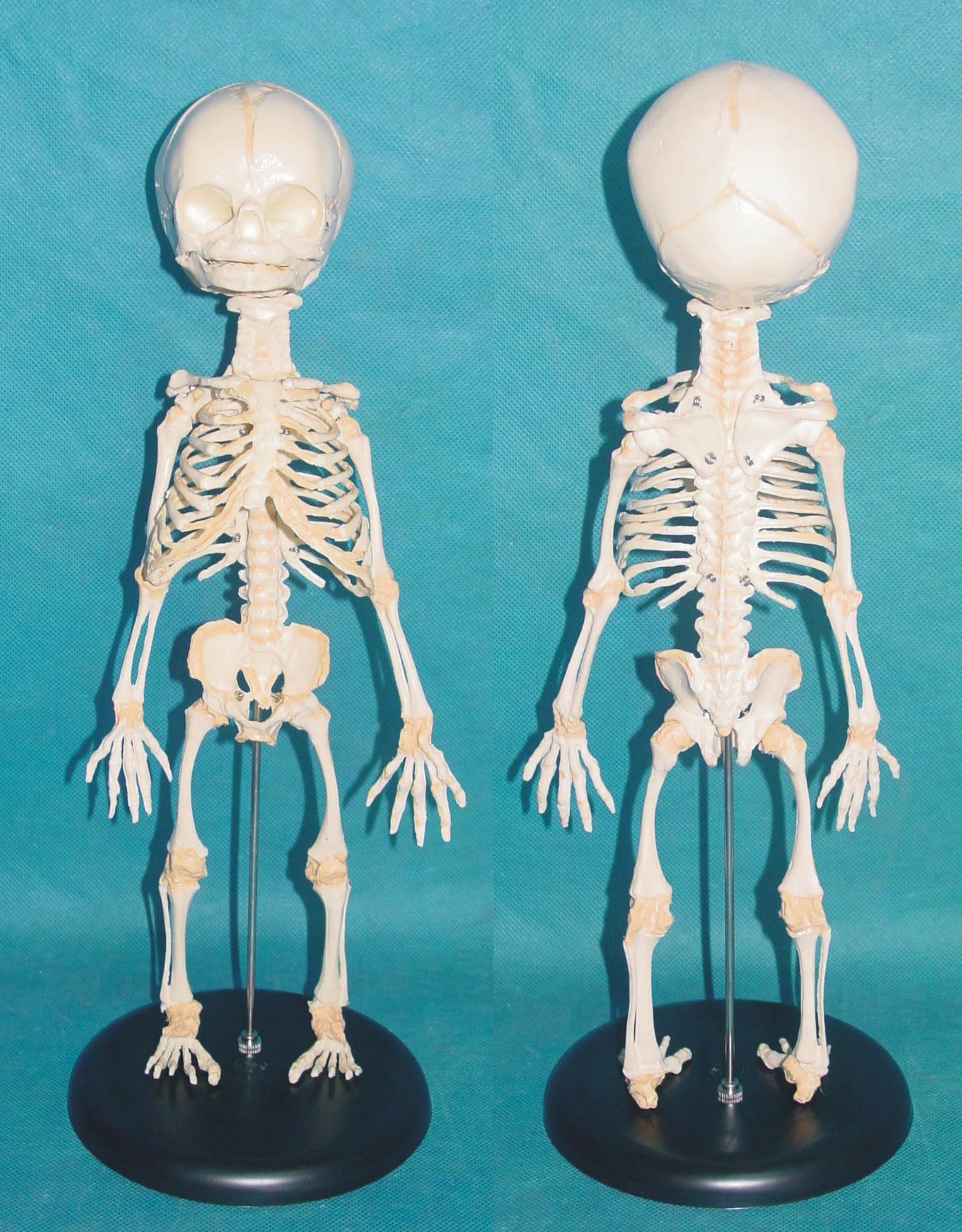 Born, Head, Skull, Baby, Brain, Anatomical