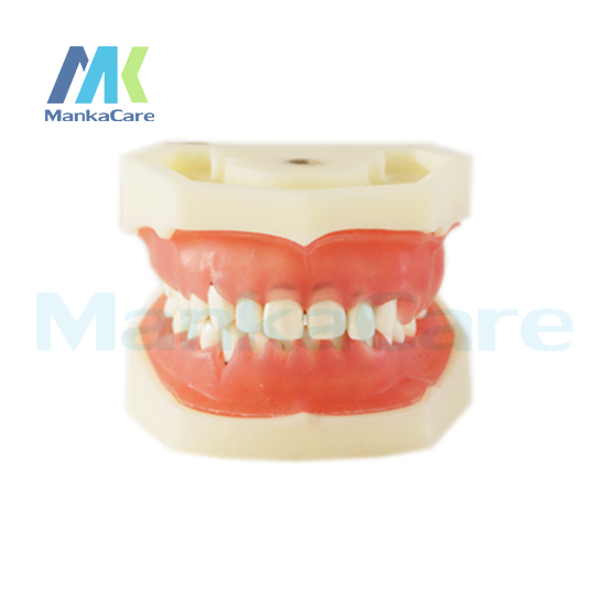Manka Care - Periondontally involved model with soft gingivae Alveolar bone and Gingivae is in illness state ragini suri naso alveolar molding an orthodontic perspective