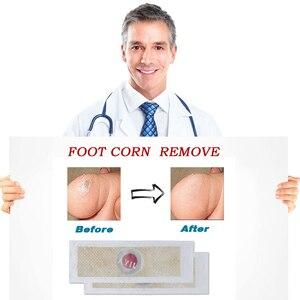 Image 4 - 12PCS Medizinische Pflaster Fuß Mais Entfernung Warzen Dorn patches Mais von fuß Schwielen Callosity Detox clavus Medizinische Patch
