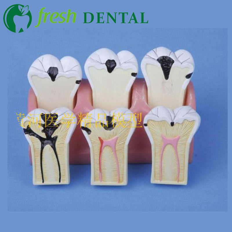 1pc Dental Caries Decomposition Model dental teaching Model human molar teeth model SL718 soarday 1 piece 2 times dental pathological model display deep caries shallow caries teaching model