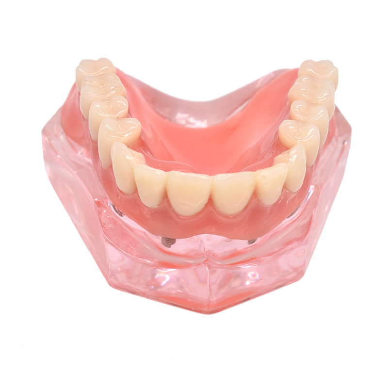 Dentes dentários dentários modelo interior removível mandibular