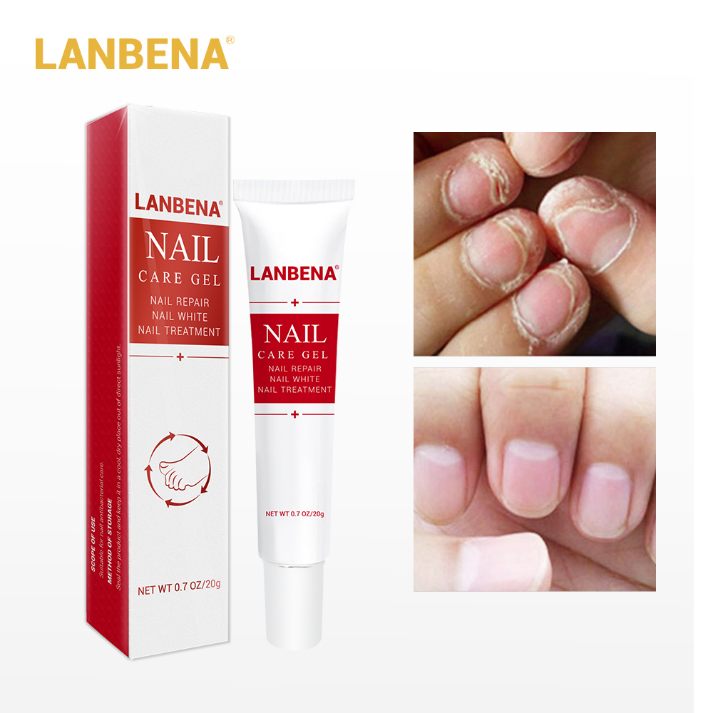 купить LANBENA Nail Care Gel Fungal Nail Treatment Remove Onychomycosis Nail Care Nourishing Effective Against Nail Hand and Foot Care по цене 339.99 рублей