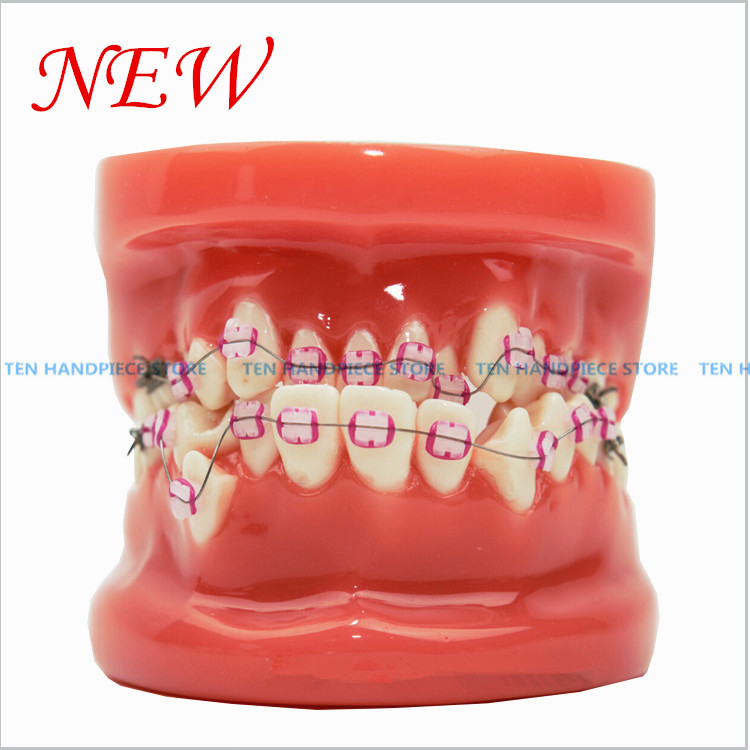 2018 New Orthodontic tooth model with Ceramic bracket model Doctor patient communication teaching model dental materials soarday children primary teeth alternating transparent model dental root clearly displayed dentist patient communication