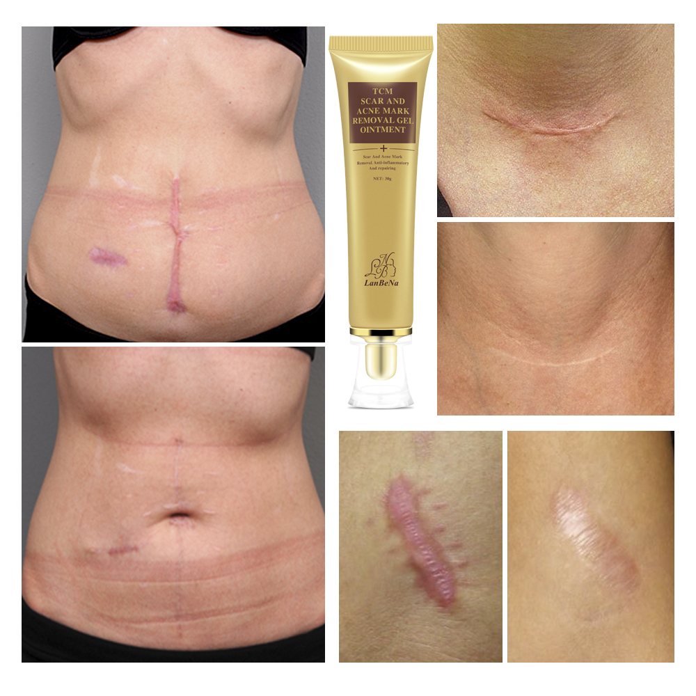 Купить с кэшбэком LANBENA Acne Scar Stretch Marks Remover Cream Skin Repair Cream Blackhead Whitening Stretch Marks Ginseng Extract Face Care Gel