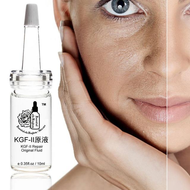 Kgf-II reparação fluid original Alivia A cicatriz capillarie acne essência Clareamento da pele Hidratante anti-sensível 10 ml * pcs
