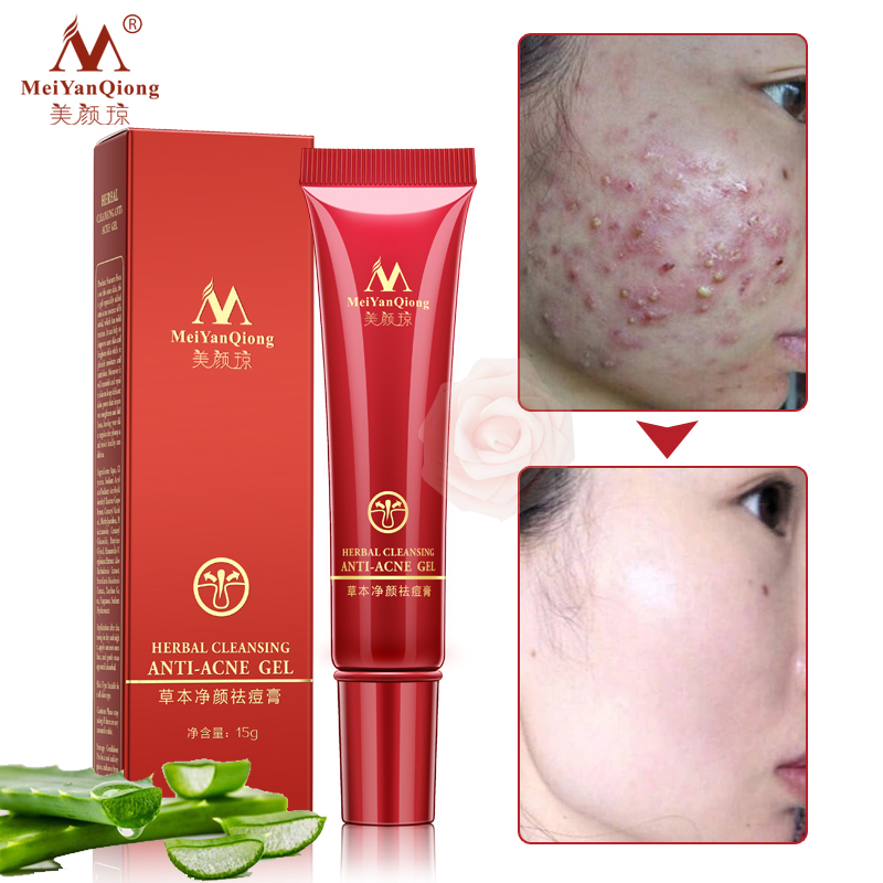 Face Acne Cleaning Cream Skin Care Remove Repair Comedone Pimple Acne Quickly Face Acne Cream Remover Anti Acne Treatment vietnam ginger anti acne ointment pimple scar cream acnes treatment remove acne scar repair skin face skin care