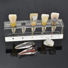 Стоматологическая эндодонтическая патологическая модель передних лицевых зубов Стоматологическая лаборатория Стоматологическая модель Эндо