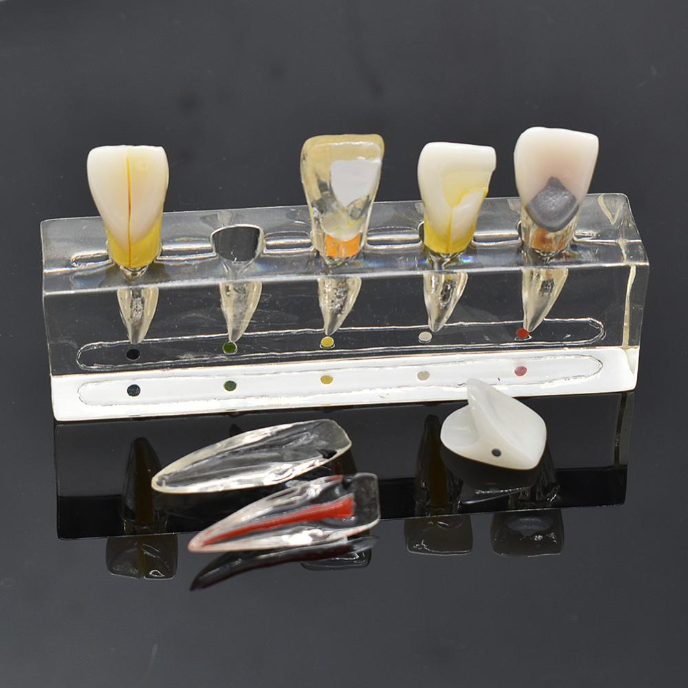 Dental Endodontic Pathological Anterior Front Labial Teeth Model Dental Lab Dentistry Endo Model