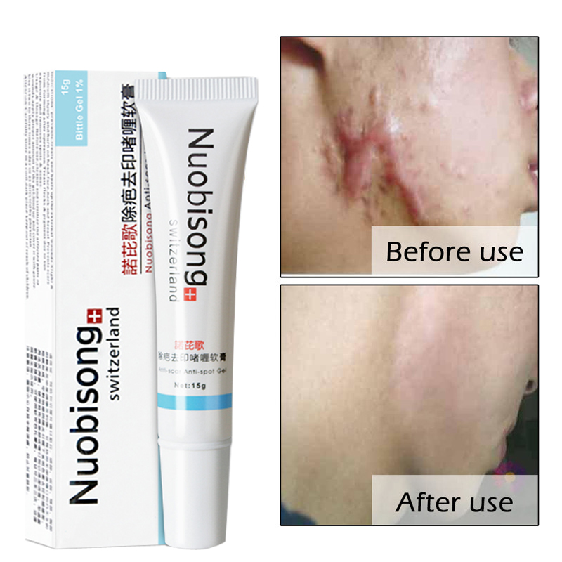 Nuobisong Anti-scar Cream Anti-spot Acne Treatment Face Cream Scar Stretch Marks Removal Whitening Moisturizing Cream