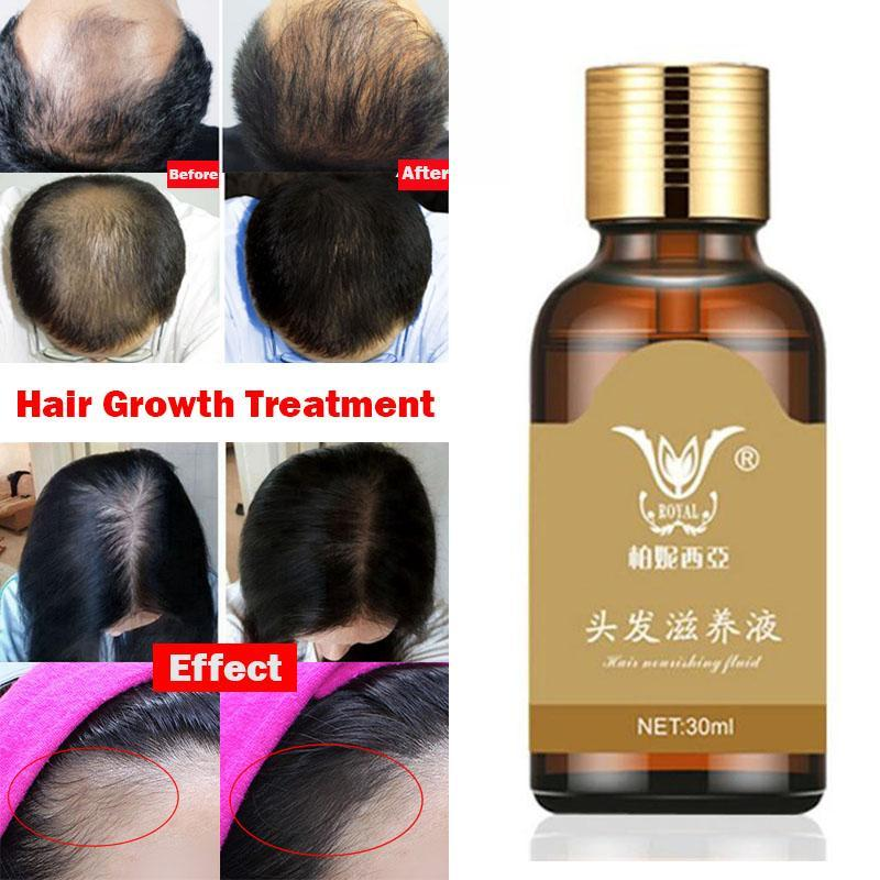 Astounding Compare Prices On Womens Hair Loss Products Online Shopping Buy Hairstyles For Men Maxibearus