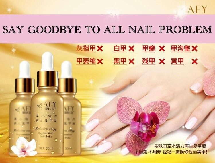 AFY Fungal Nail Treatment TCM Essence Oil Hand and Foot Whitening Toe Nail Fungus Removal Feet Care Nail Tools Nail Gel Polish 3