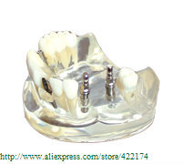 Free Shipping Implant practice model for study dental tooth teeth dentist anatomical anatomy model odontologia купить