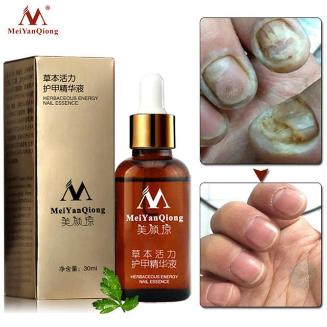 Fungal Nail Treatment Feet Care Essence Nail Foot Whitening Toe Nail Fungus Removal Gel Anti Infection Paronychia Onychomycosis