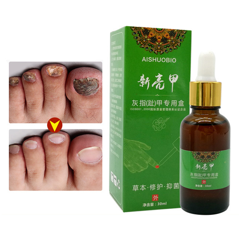 Onychomycosis Fungal treatment Nail Treatment Feet Care Essence oil Nail and Foot Whitening Toe Nail Fungus Removal Gel 30ml