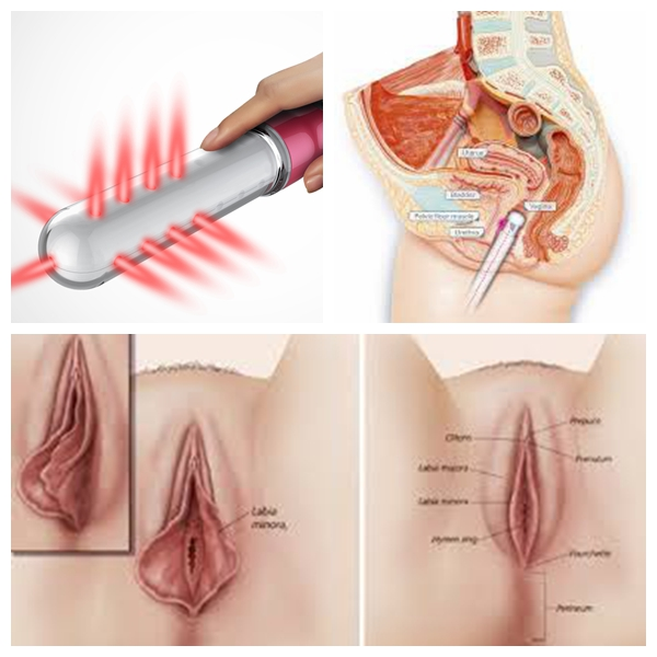 Painless cold lazer treatment gynecology treatment instrumnt with vibrators function laser therapy device for women home use factory price women healthcare device gynecology diseast with probe women laser therapy device for private disease treatment