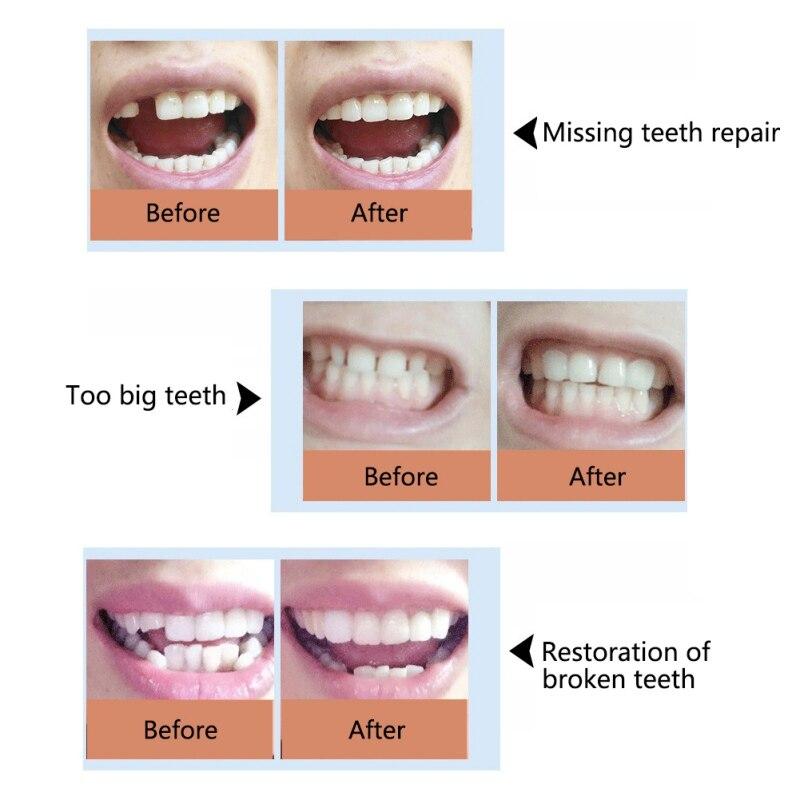 Hot False Teeth Solid Glue Temporary Tooth Repair Set Teeth and Gap Falseteeth Solid Glue Denture Adhesive Teeth Care 10g50g100g in Teeth Whitening from Beauty Health