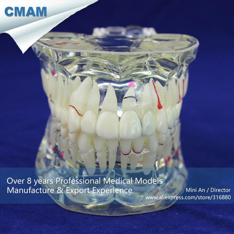 12568 CMAM-DENTAL09 Adult Dental Teeth Model, Transparent Disase Model Show Caries and Pathologies soarday dental endodontic restoration model teaching communication model pathological display dental caries