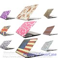Paintting Case Cover For Apple macbook Air 11 A1465 laptop bag For Macbook 11.6 inch with Screen Protector Film/keyboard cover