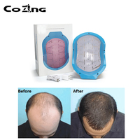 COZING Laser Helmet physical therapy hair lose diodes Medical Treatment Hair Loss Solution Hair Fast Regrowth LLLT Laser Cap Fre