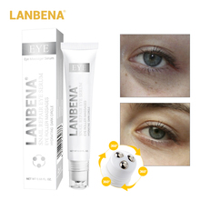 LANBENA Snail Repair Eye Serum Cream Dark Circle Moisturizing Anti-Aging Patch Whitening Skin Care Face