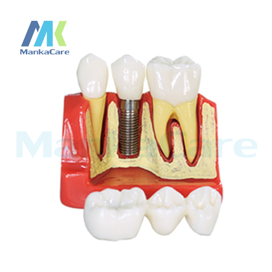 Manka Care -  4Times Implant Model/Made of high quality resin Oral Model Teeth Tooth Model
