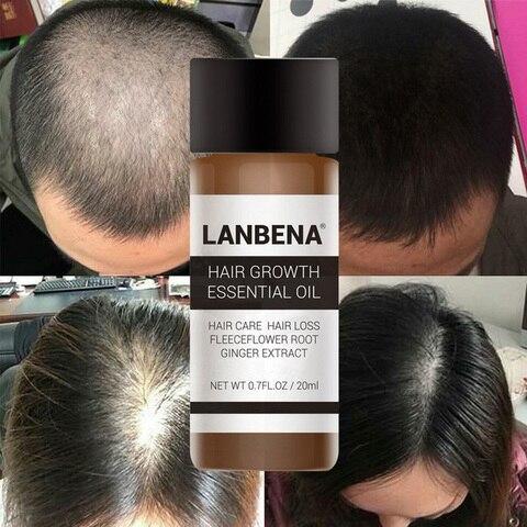 LANBENA Hair Care Ginger Extract Hair Growth Essential Oil Repair Strengthen Thicken Hair Prevent Hair Loss Nourish Awaken 20ml Karachi