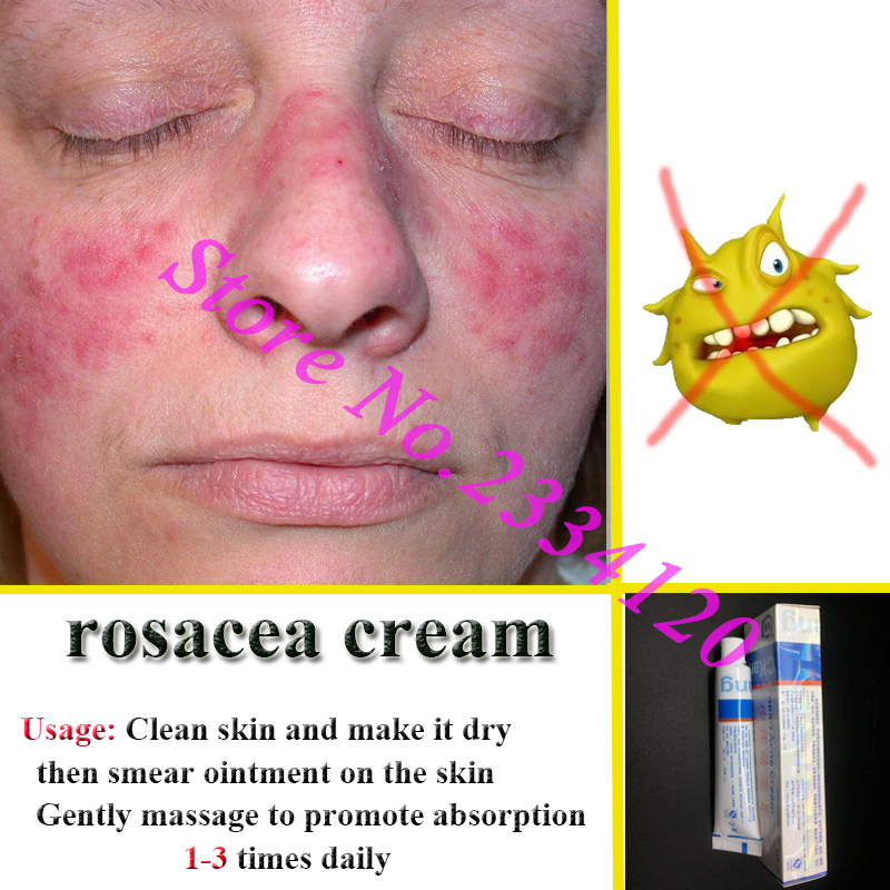Rosacea Cream Red Nose Ointment Remove Blackhead Acne Cream Skin