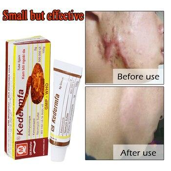 Vietnam Remove Scar Cream Remove Acne Spots Remove Striae Gravidarum Pigmentation Corrector Anti-Aging Moisturizing 5ml