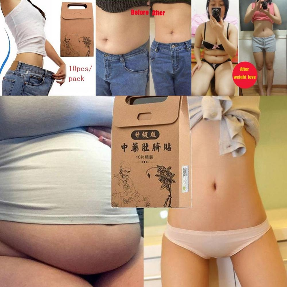 Slimming-Stickers Detox-Film Weight-Loss Chinese Best-Selling Medicine-10x High-Quality