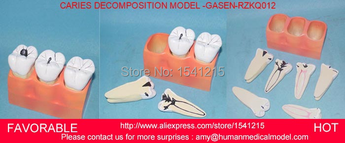 DENTAL CARIES MODEL,DENTAL DENTAL MODEL ,DENTAL CAST MODEL FOR DEPARTMENT OF DENTISTRY ,MEDICAL ANATOMY MODEL-GASEN-RZKQ012