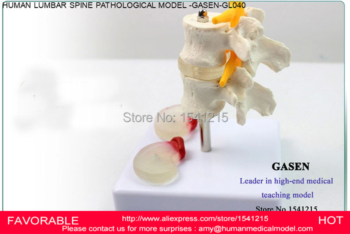 LUMBAR MODEL SPINAL NERVE MODEL CAUDAL EQUINA NERVE LUMBAR SPINE DISC MODEL SPINE CHIROPRACTIC SKELETON MODEL-GASEN-GL040 some nerve