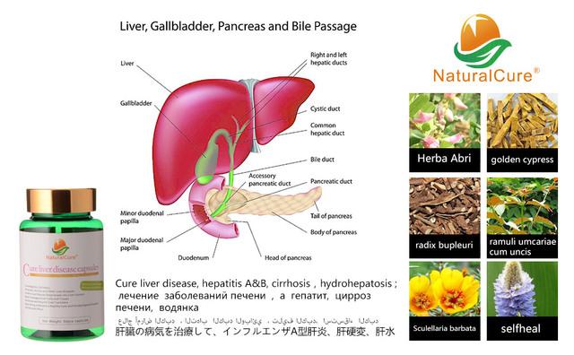 Cura Las Enfermedades Del Hígado NaturalCure Caps-dulos, curar y Prevenir la Cirrosis, curar El Cáncer de Hígado, 100% Eficaz y Sin Efectos Secundarios