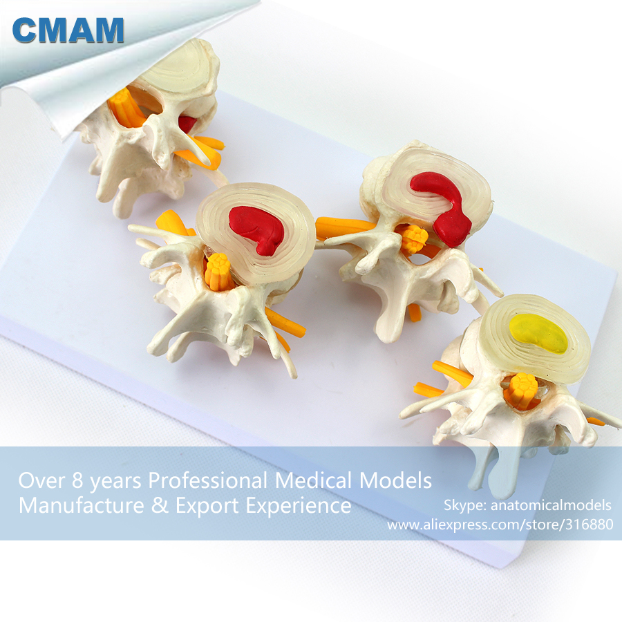 12396 CMAM-VERTEBRA12 Human Lumbar Vertebrae Degenerative Disc Disease Model,  Medical Science Educational Anatomical Models 12384 cmam vertebra01 human lumbar vertebrae w sacrum