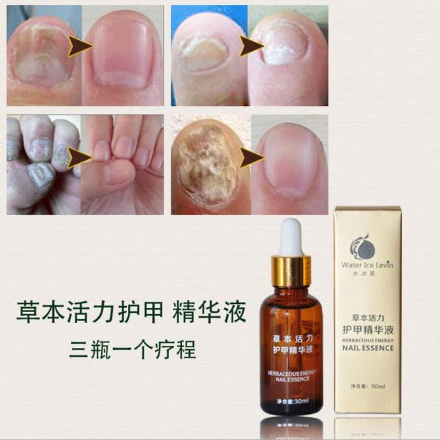 30 ml Pure plant fungal tratamiento de uñas esencia uñas y pies ...