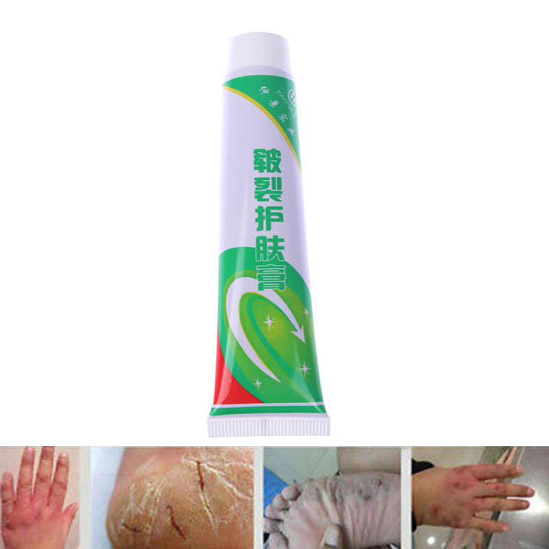 Hot Sale Powerful Hand Foot Crack Cream Heel Heel Chapped Peeling Foot and hand Repair Anti Dry Crack Skin Care Chinese Ointment
