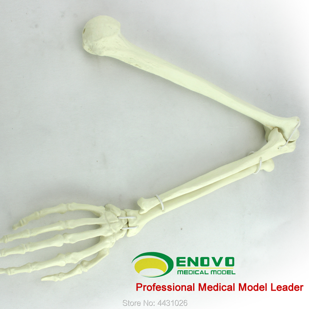 ENOVO The artificial cortical bone cancellous bone graft was implanted into the simulation model the bone queen