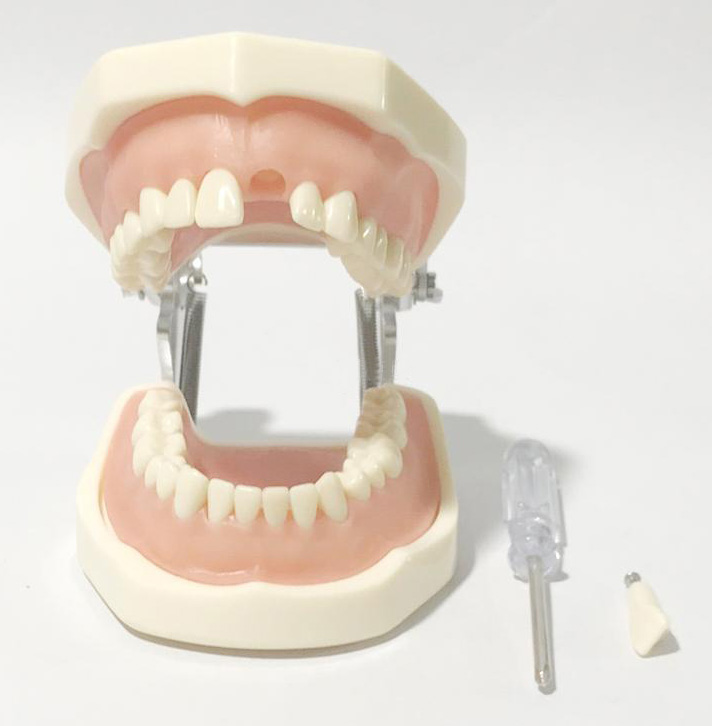 Dental lab model Soft gums 32 teeth Preparation of teeth Practice model teeth orthodontic model ceramic braces wrong jaw demonstration model orthodontics practice model