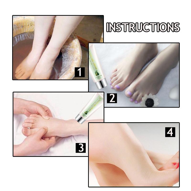 Shea Butter Chinese Foot Cream Foot Peel Anti Dry Crack Anti Swelling Foot  Spa Remove Dead Skin Repair Moisturizing Feet Lotion|Feet| - AliExpress