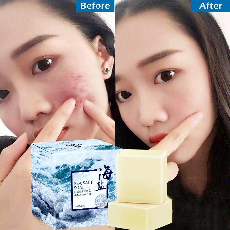 Sea Salt Soap Pimple Acne Treatment Goat Milk Moisturizing Face Cleaning Soap FM88
