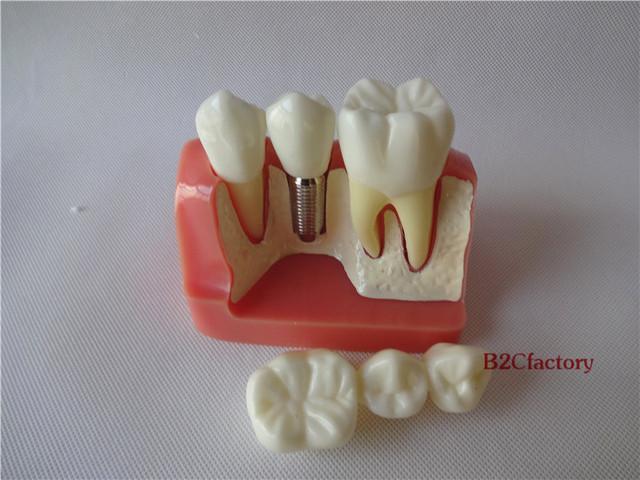 Dental Implant análise Crown ponte dentes demonstração modelo 2017
